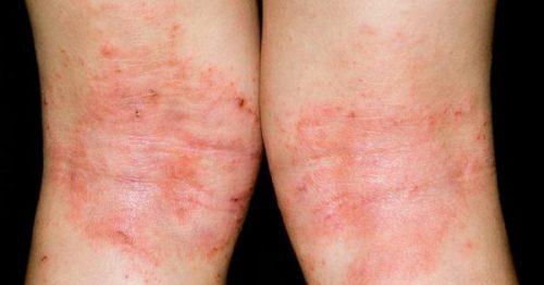 bieu hien benh eczema