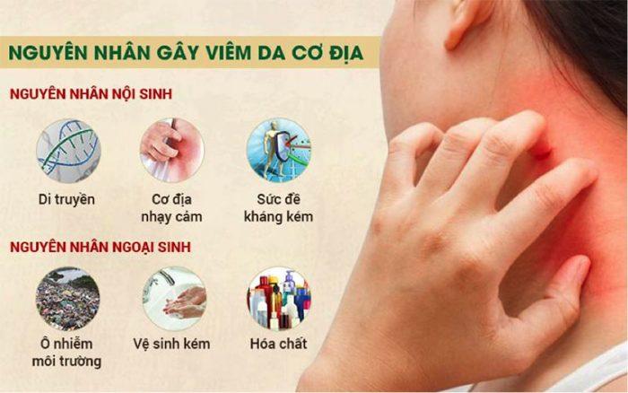 Nguyên nhân bệnh viêm da cơ địa