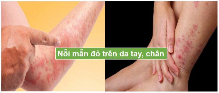 nỗi mẫn đỏ trên da