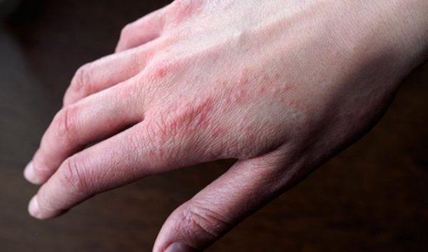 bệnh eczema nhẹ