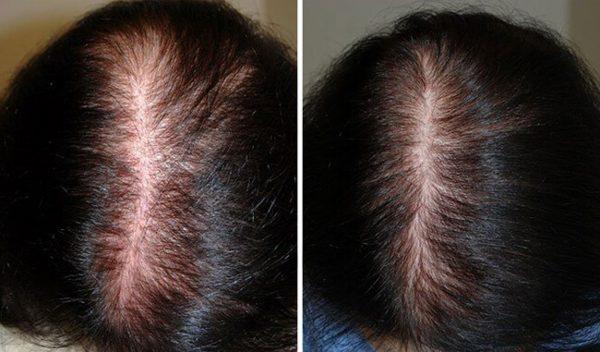 chữa rụng tóc hiệu quả